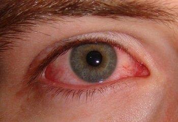 болят глаза от сварочных работ